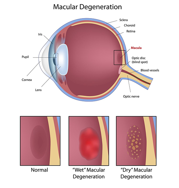 Macular Degeneration Causes in Las Cruces